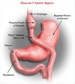 gastric-1